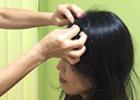 頭首はり治療
