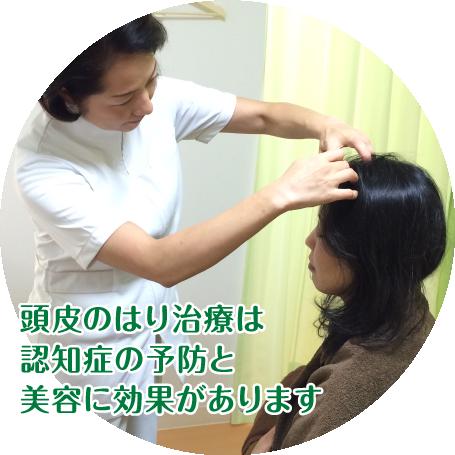 頭皮のはり治療は、認知症の予防と美容に効果があります