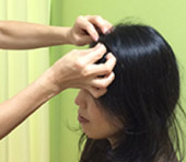 頭皮へのはり治療