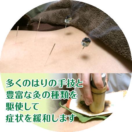 多くのはりの手技と豊富な灸の種類を駆使して、症状を緩和します